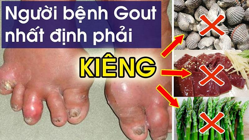 Người bị bệnh gout không nên ăn